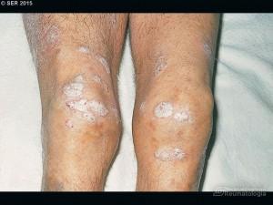 Artritis psoriásica. Lesiones cutáneas