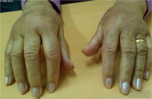 Artritis bilateral de 2-3 MCFs en paciente con artritis psoriásica.  Dr. Carlos Rodríguez Escalera.