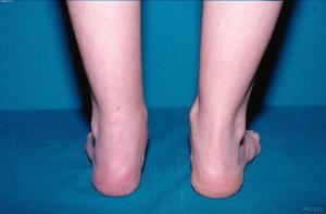 Tendinitis aquílea. Paciente con artritis idiopática juvenil forma artritis entesitis HLA B27 +. Dr. Juan Carlos López Robledillo.